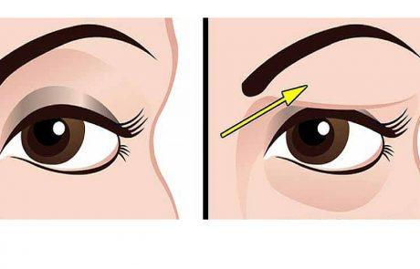 איך לטפל בעפעפיים נפולות באופן טבעי לגמרי. התוצאות מדהימות!