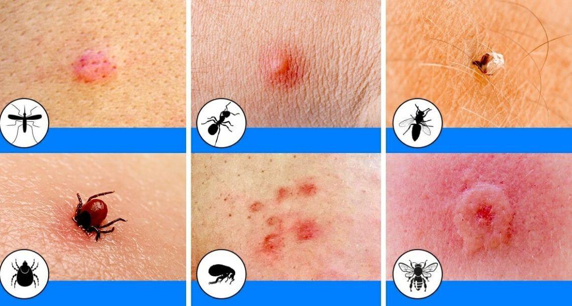 10 עקיצות שכיחות של חרקים שכולם צריכים להכיר כדי לזהות