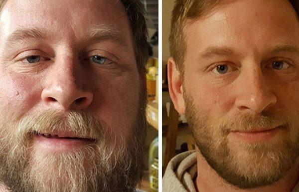 13 תמונות לפני ואחרי שמראות מה קורה כשאתם מפסיקים לשתות אלכוהול