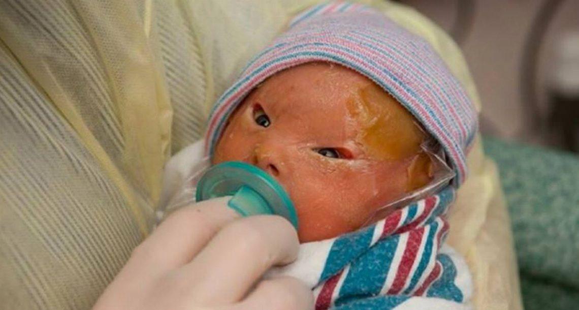 אמא הייתה שבורה כשראתה את התינוקת החדשה שלה – שבועיים לאחר מכן, הם הבינו שהיא נס