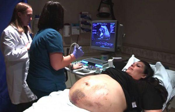 לאמא היו פצעים על כל הבטן: אז הרופאה הסתכלה על האולטרסאונד וקפאה