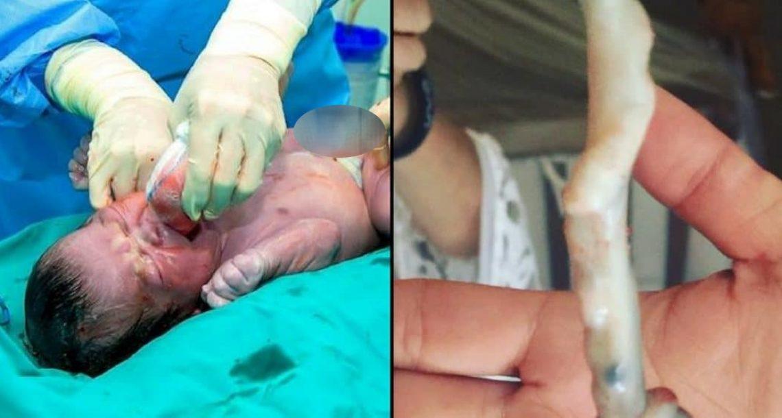 רופא יילד תינוק צורח – הסתכל שוב על חבל הטבור ומיד ביקש מאבא לצלם