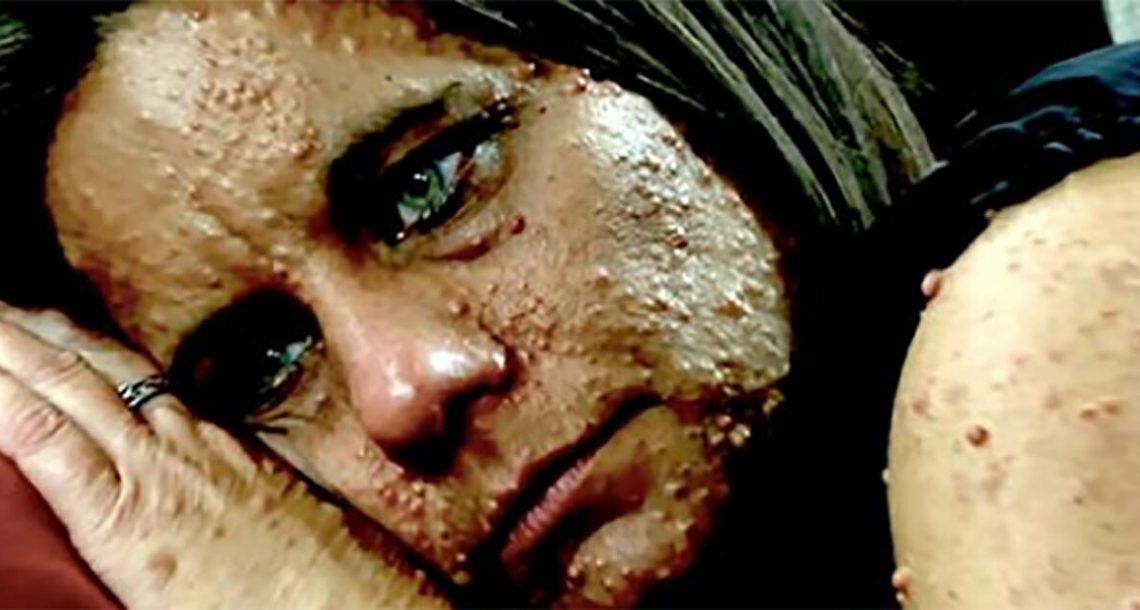 אישה עם 6000 גידולים הייתה קורבן לבריונות – המהפך עוצר הנשימה שעברה השאיר את בתה בדמעות