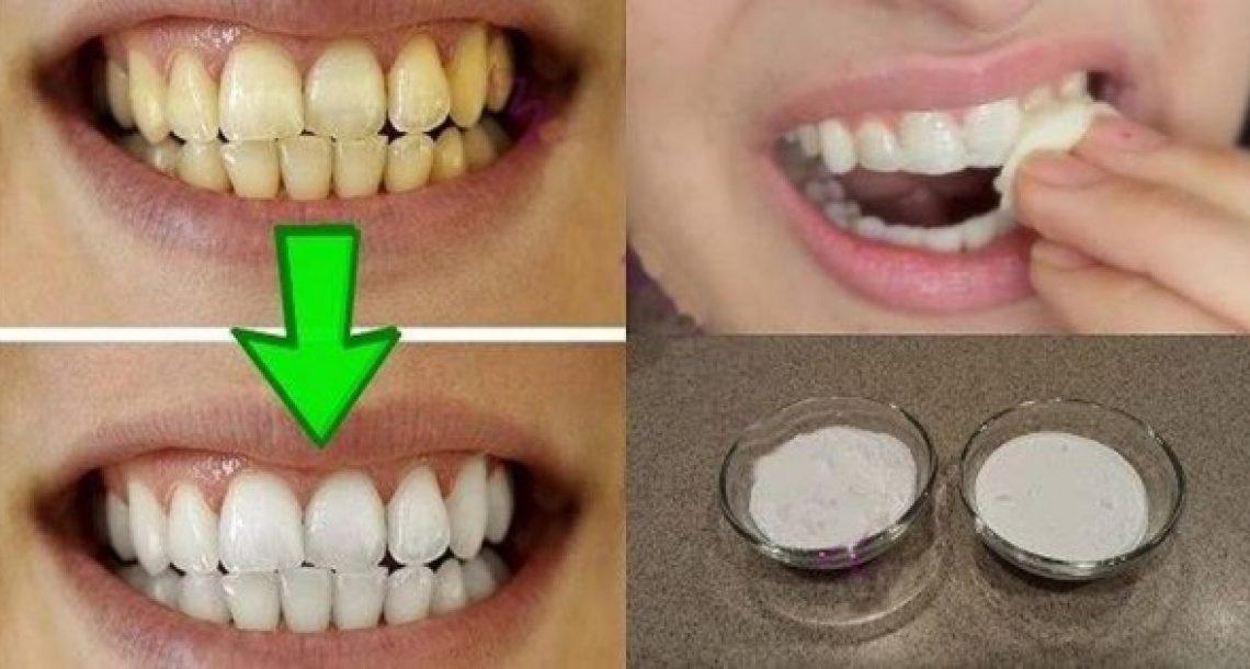 סובלים משיניים צהובות? התרופה הביתית והטבעית הזו תלבין לכם את השיניים תוך 2 דקות בלבד!