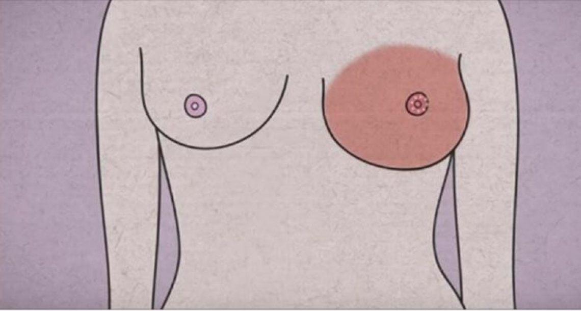 הגוף שלכן מזהיר אתכן לפני סרטן השד: 5 סימני אזהרה שאסור להתעלם מהם