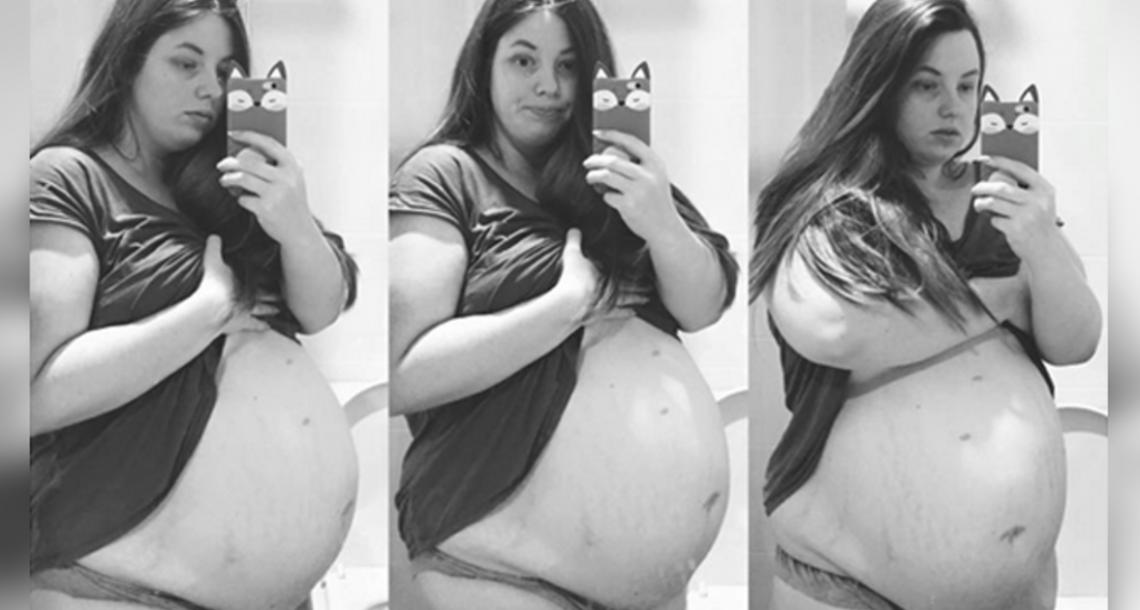 רופאים ביקשו מאמא להקריב את בתה כדי להציל את הבנים שלה – התגובה שלה הפכה אותה לגיבורה עולמית!