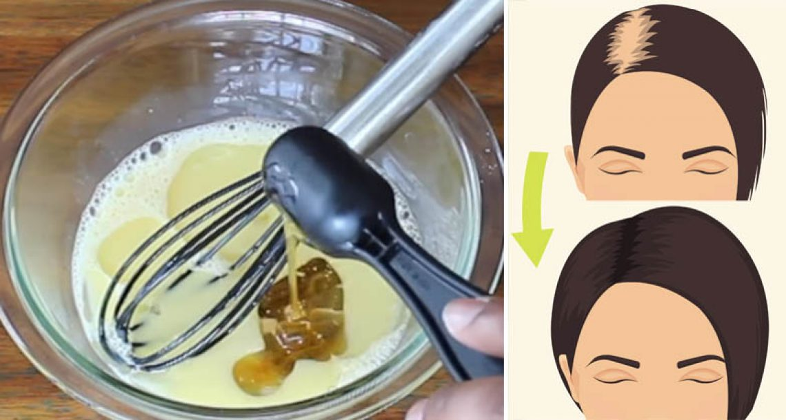 ערבבו את 3 המרכיבים האלה כדי להצמיח במהירות שיער חזק, עבה ובריא