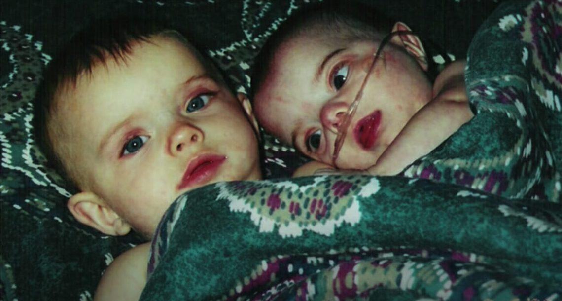 תאומה זהה שנולדה עם גמדות קיבלה 24 שעות לחיות – שני עשורים אחר כך היא פורחת כנגד כל הסיכויים