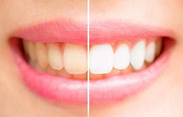 הלבינו את השיניים שלכם בבית בצורה טבעית תוך 3 דקות בלבד! יעיל ב 100%!