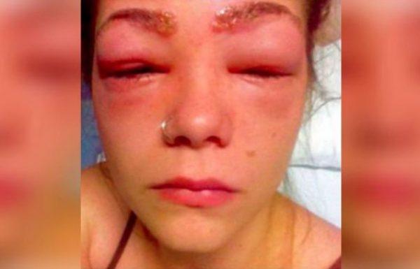 נערה התעוררה בבוקר עם פנים נפוחות וכמעט עיוורת. הבינה מהר מה קרה, ועכשיו מזהירה אחרות