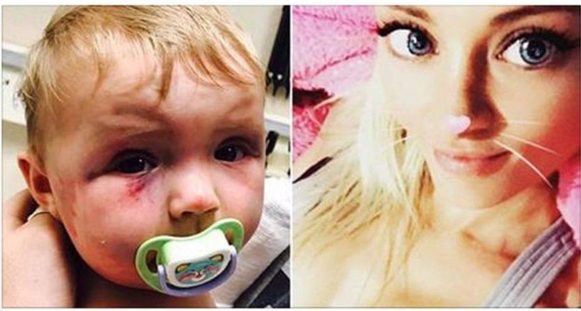 אמא הרביצה לתינוקת שלה וגרמה לה לסימנים כחולים, העונש של השופט גרם לאינטרנט לרתוח מזעם