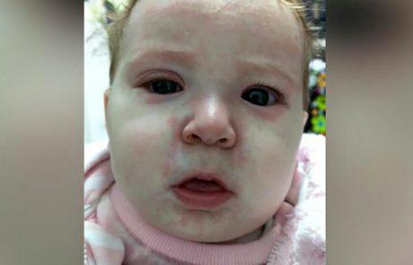 התינוקת הזו נדבקה בחצבת בגלל מתנגדי חיסונים