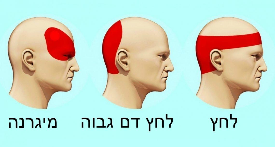 איך להיפטר מכאב ראש תוך 5 דקות בלי שימוש בכדורים