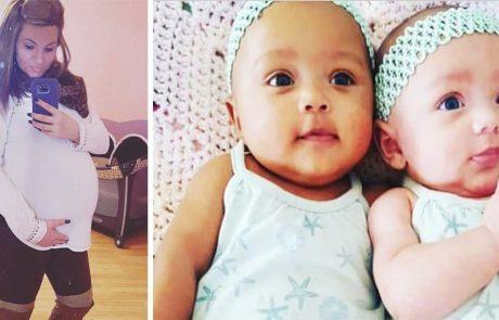 אמא ילדה תאומות מיוחדות וייחודיות – אז גילתה שהסיכוי שיוולדו ככה היה 1 למיליון