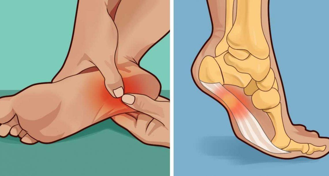 האם העקב שלכם כואב בבוקר או בכל פעם שאתם עומדים? זה מה שאתם צריכים לדעת