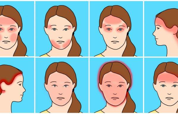 10 סוגים של כאבי ראש שכיחים והגורמים המפתיעים שלהם