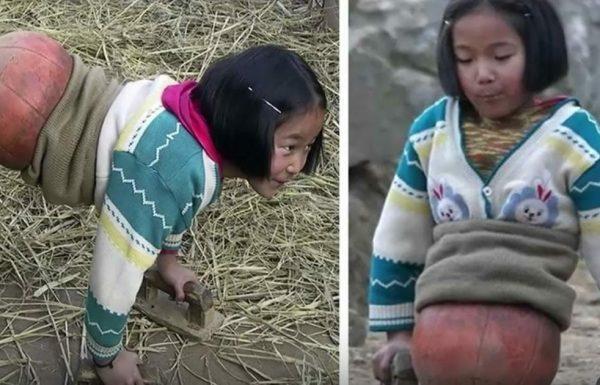 'ילדת הכדורסל' איבדה את רגליה בתאונה מחרידה – 10 שנים אחר כך היא מיליונרית וככה היא נראית