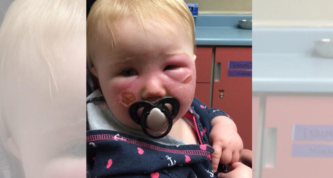 תינוקת סבלה מכוויות קשות – עכשיו אמא שלה רוצה להזהיר אחרים מפני הקרם הנפוץ הזה