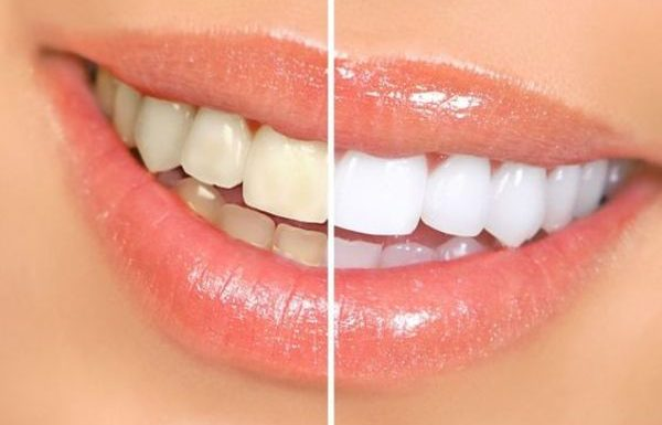 תעשו את זה לפני שאתם מצחצחים שיניים – זה יחסוך לכם המון כסף!