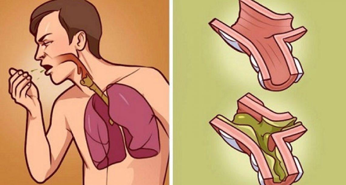 כשהריאות שלכם מלאות בליחה, זו התרופה הטובה ביותר! היא 100% טבעית ופועלת תוך מספר שעות!