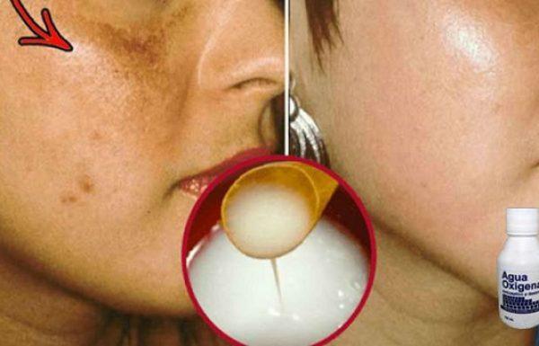 גם לכן יכול להיות עור נקי מפצעים וקמטים בעזרת המתכון הביתי והטבעי הזה!