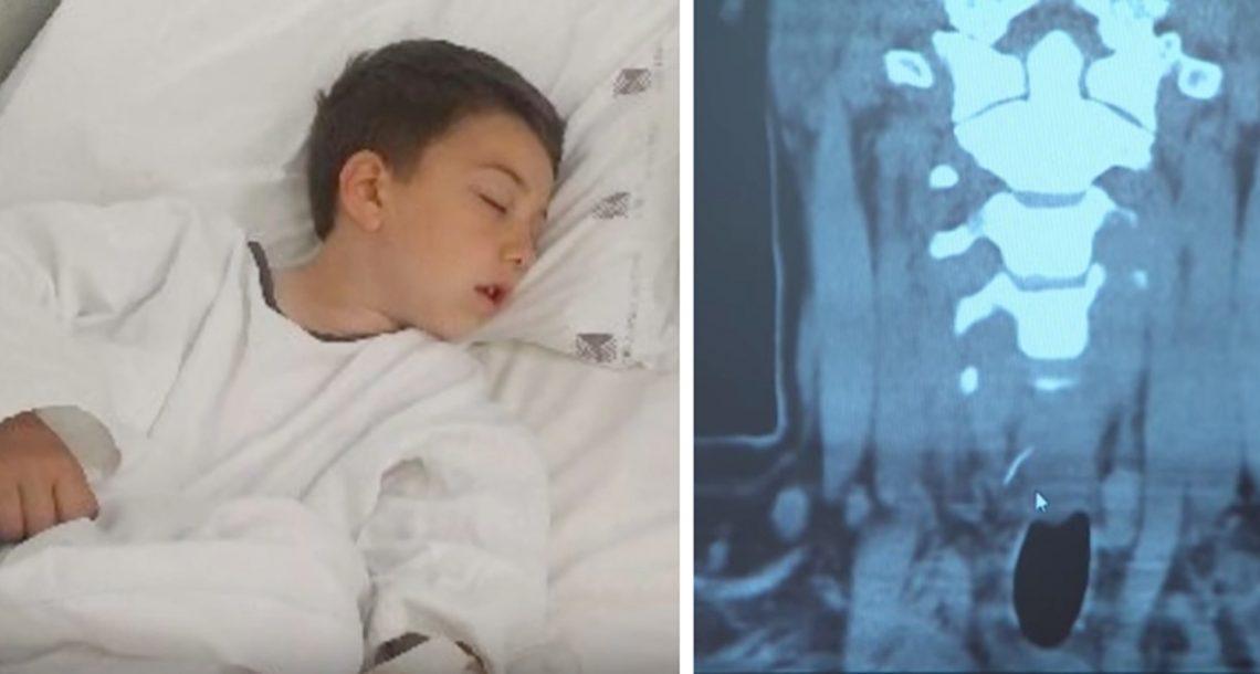 הילד הזה סבל מכאב נוראי בבטן אחרי שאכל המבורגר – בבית החולים הם גילו את הסיבה המזעזעת