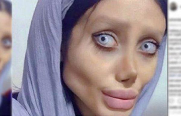 """היא עברה 50 ניתוחים פלסטיים וירדה 40 ק""""ג – הכל כדי להיראות כמו האלילה שלה אנג'לינה ג'ולי"""