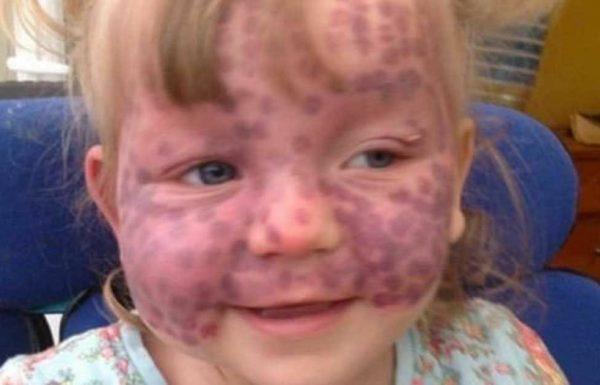 בהתחלה רופאים חשבו שמתילדה סובלת 'רק' ממכות: שבועיים אחר כך היא נלחמת על חייה
