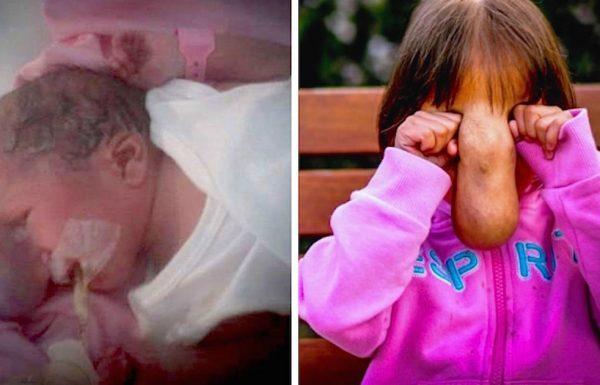 תינוקת נולדה עם מום עצום באמצע הפרצוף – ארבע שנים אחר כך היא נראית כמו בן אדם שונה לגמרי