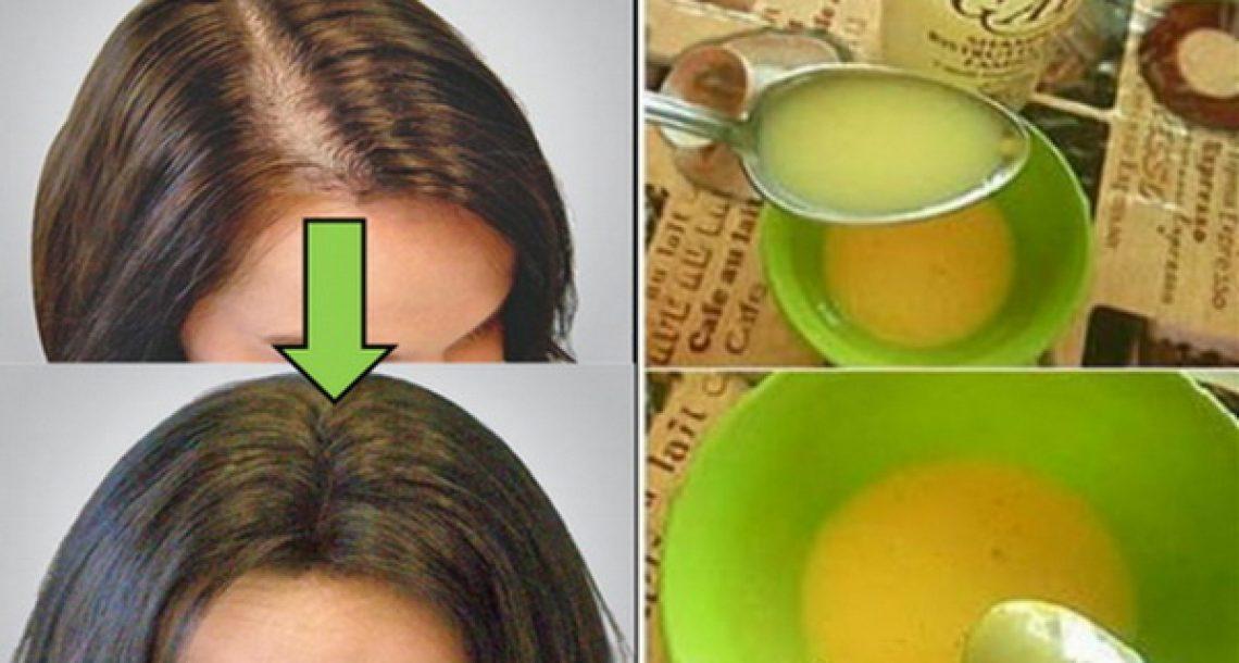 כל הרופאים הופתעו! הטיפול הזה מונע נשירה ומסייע לשיער לצמוח ולגדול בצורה חזקה ובריאה