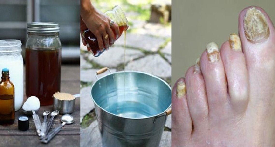 הטיפול הטבעי הזה עם 2 מרכיבים בלבד יעזור לכם להיפטר לנצח מפטרת ציפורניים!