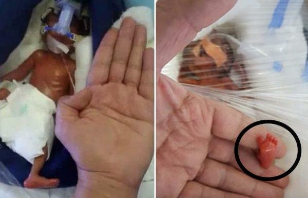 תינוקת ששוקלת 400 גרם קיבלה גזר דין מוות מהרופאים – כשראו פרט על כף הרגל שלה הם קפאו במקום