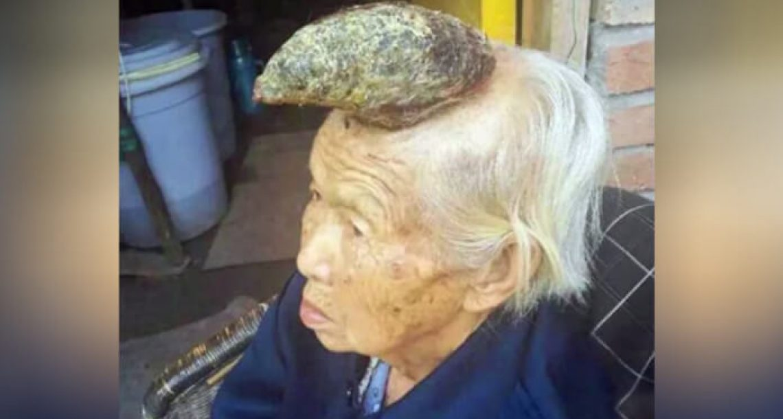 קרן גדלה על ראשה של אישה סינית בת 87. הרופאים מעולם לא ראו דבר כזה