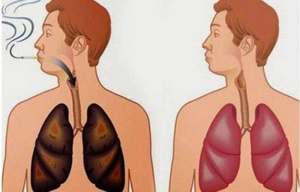 המתכון הזה ינקה בקלות את הריאות שלכם, אפילו אם אתם מעשנים 5 שנים!