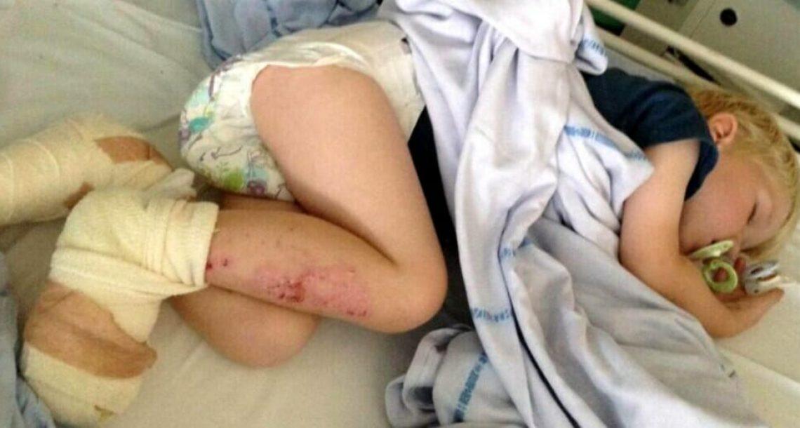 ילד בן 3 רץ לאמא שלו עם פצעים מדממים – כשהבינה מה קרה, היא לא האמינה למראה עיניה