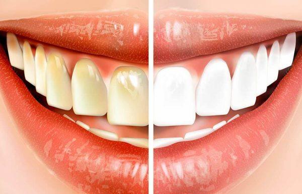 תעשו את זה לפני שאתם מצחצחים שיניים ותחסכו אלפי שקלים על טיפולי שיניים!