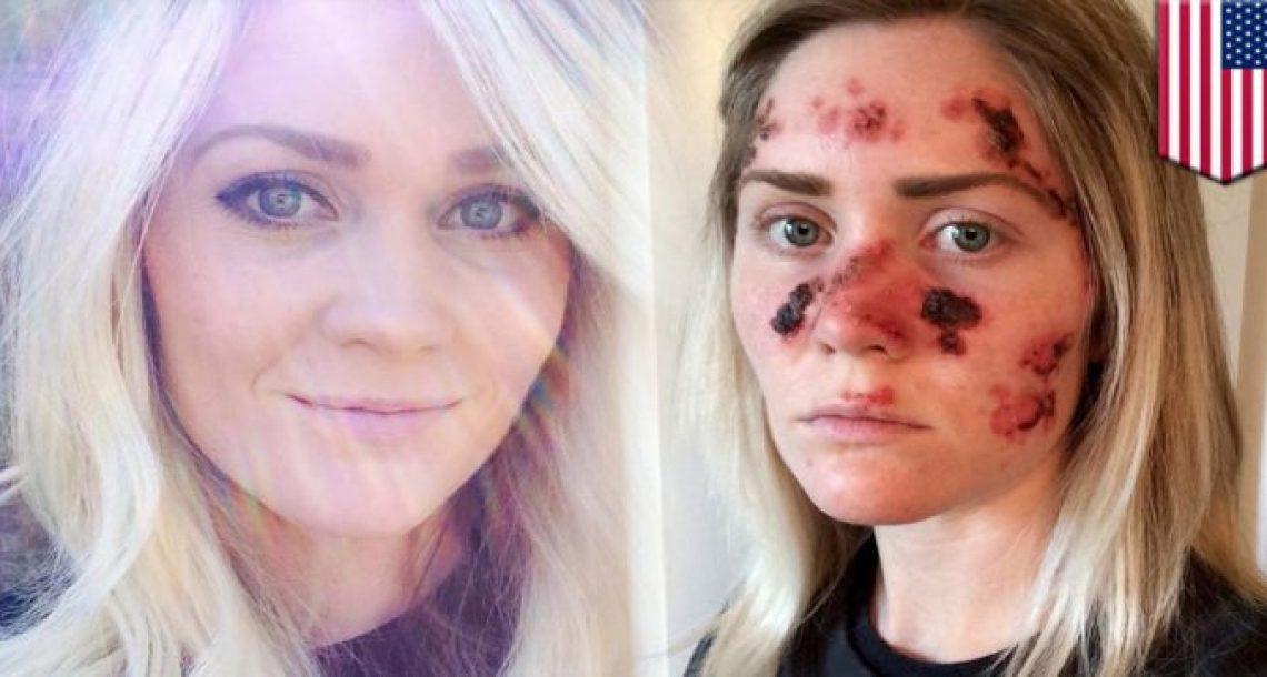 אישה מזהירה נשים אחרות מפני הסכנה הזו, אחרי שהפנים שלה הפכו לזה