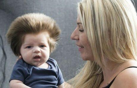 אמא ילדה תינוק עם שיער ארוך בצורה קיצונית – הסתכלה מקרוב ונכנסה להלם מהאמת