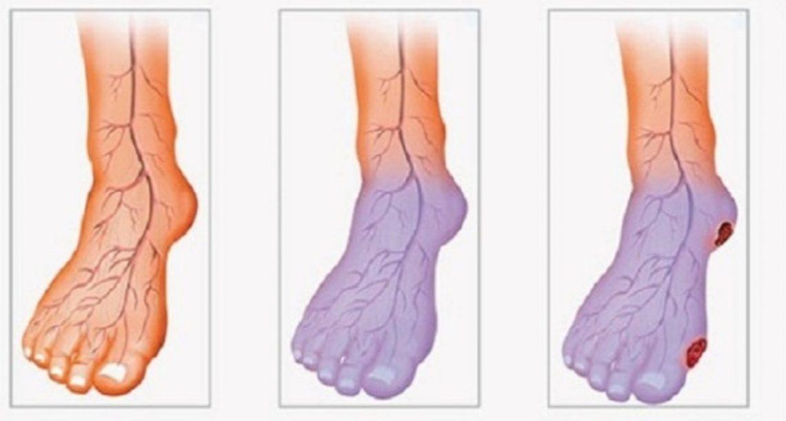 6 דרכים פשוטות וטבעיות לשיפור מחזור הדם שלכם
