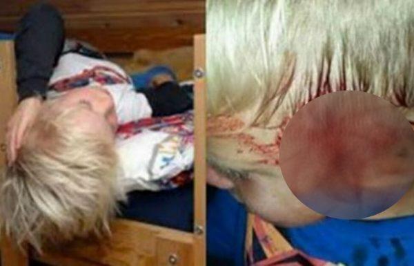 אמא התעוררה אחרי ששמעה את בנה צורח: ראתה מה נמצא על הפנים שלו ומיד התקשרה למשטרה