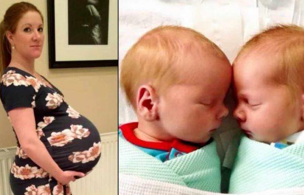 לאמא הייתה בטן הריונית עצומה: כשהתאומים נולדו ושמו אותם על המשקל – צוות בית החולים היה בהלם