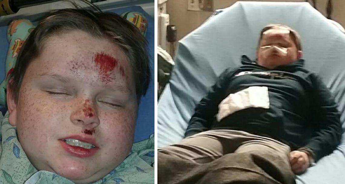 ילד הופל לרצפה ואיבד את ההכרה בידי שני 'חברים' שלו – רק כדי שיוכלו לקבל לייקים ברשתות החברתיות