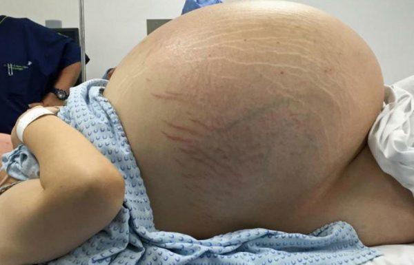 אף אחד לא הצליח להסביר את הבטן הענקית שלה – מה שהרופאים ראו בצילום הרנטגן השאיר אותם ללא מילים