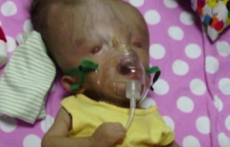 רופאים אמרו לאמא להפיל כי 'הילדה לא מתאימה לחיים'. 3 שנים אחר כך, התינוקת גברה על כל הסיכויים