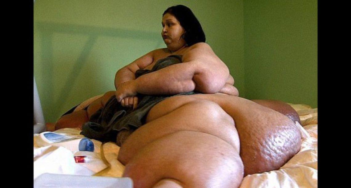 """'הרוצחת' במשקל חצי טון הורידה כמעט 400 ק""""ג ממשקל גופה וזכתה להתחלה חדשה לחיים"""