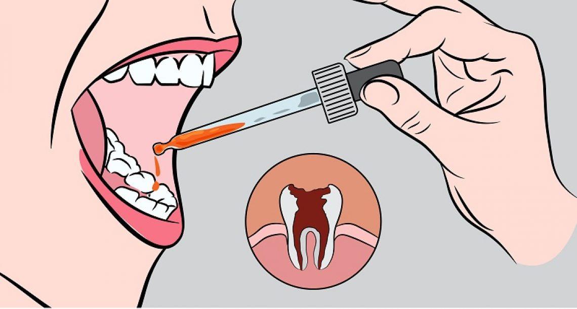 שימו כמה טיפות של התרופה הטבעית הזו בפה, והיפטרו בשניות מכאבי השיניים