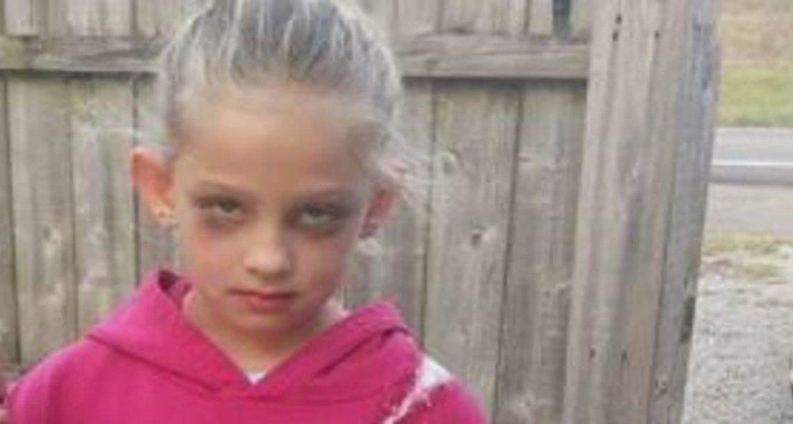 אמא צילמה את בתה המותשת בת ה 7 – כשחברה ראתה את הרגל שלה, היא מיד פרסמה את התמונה ברשת