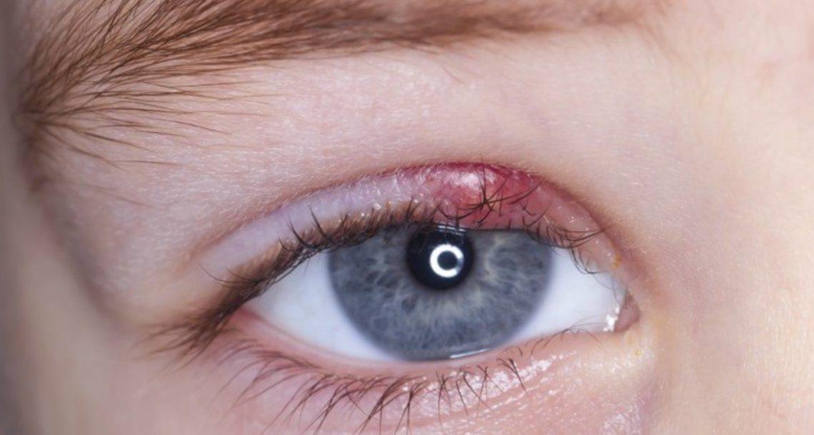 אם אתם מתעוררים בבוקר והעין שלכם נראית ככה – תעשו את זה באופן מיידי!