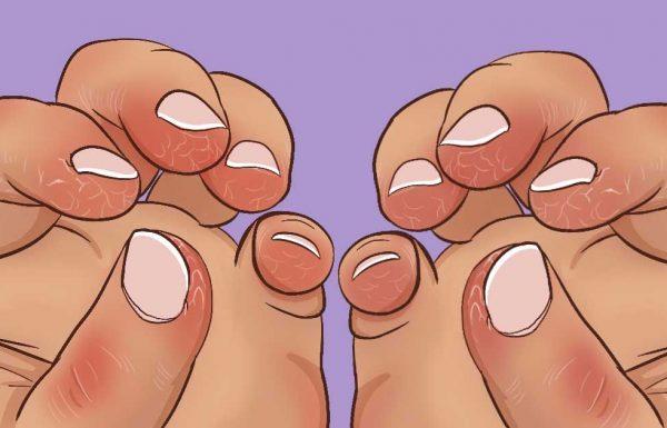 8 תרופות ביתיות וטבעיות לטיפול בעור סדוק ויבש