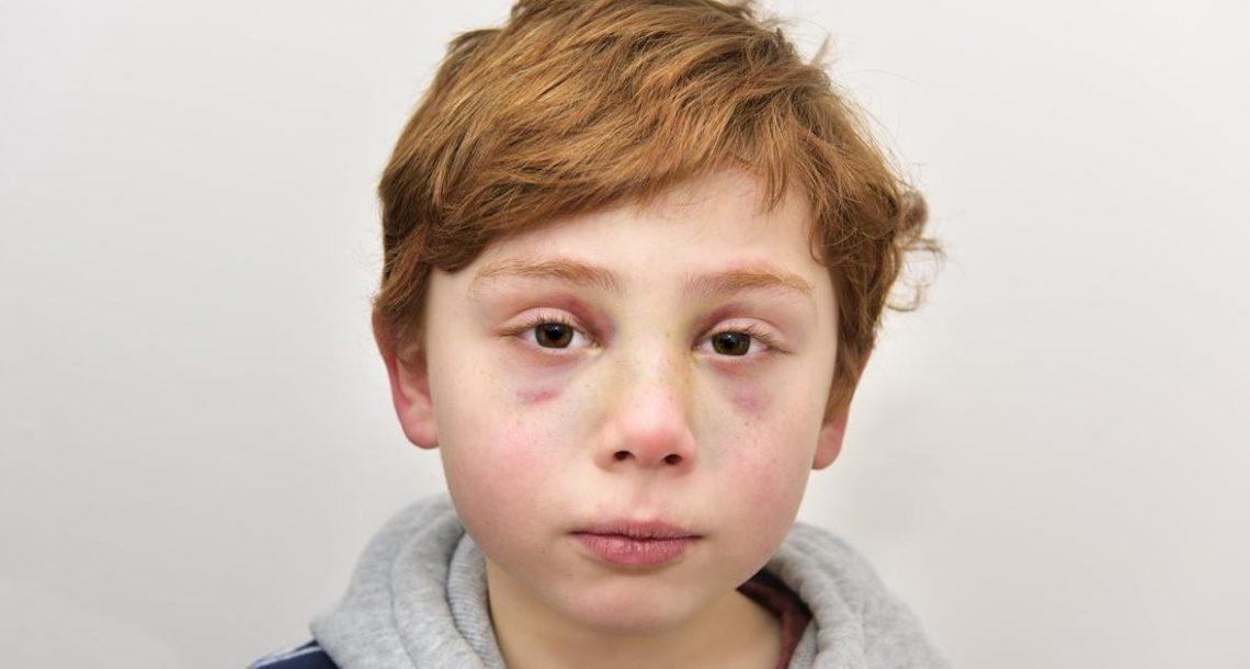 הורים הרגו את בנם בן ה 7 – אך אז הרופא מצא בידו של הילד פתק שריסק לי את הלב לרסיסים